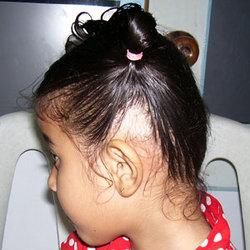 ریزش مو با انتهای سفید