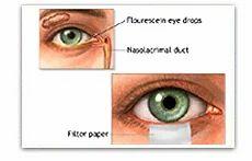 Ciprofloxacin-Eye-Drop