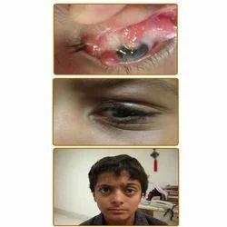 Eyes Plastic Surgery