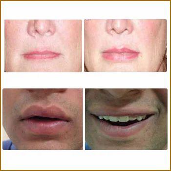 Lips Plastic Surgery Plastic Surgery Services Dr