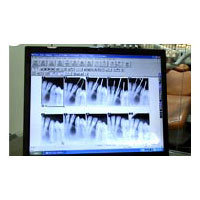 Dental X- Ray Services (RVG)